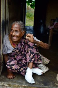 The debilitating and highly-visible deformities of leprosy have left this patient unable to walk or see, and with extremely limited use of her hands. She lives alone, in a very remote area.